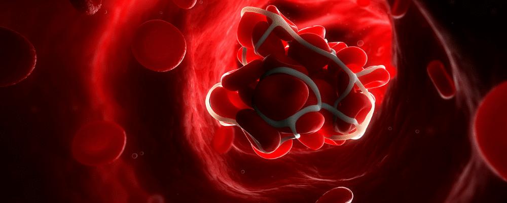 Anticoagular precocemente pode salvar o seu paciente com COVID-19