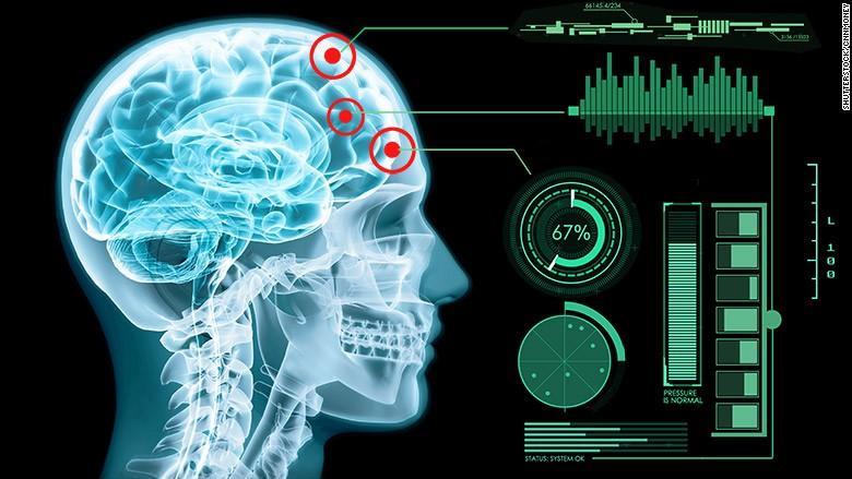 Neuralink: a união do cérebro humano com inteligência artificial ganha força com a entrada de Elon Musk neste negócio