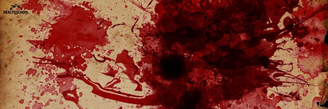 Hemoptise maciça
