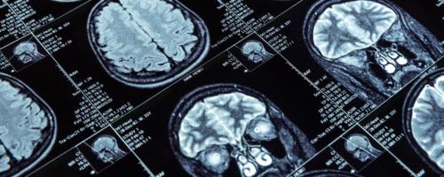 Neurocovid: 80% dos pacientes hospitalizados tem dano neurológico