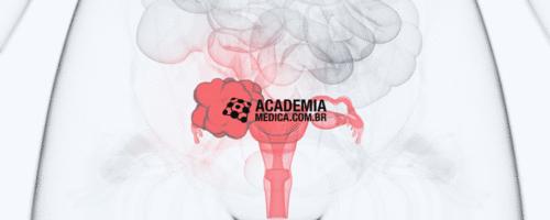 Novas recomendações da OMS para prevenção, rastreio e tratamento do câncer cervical
