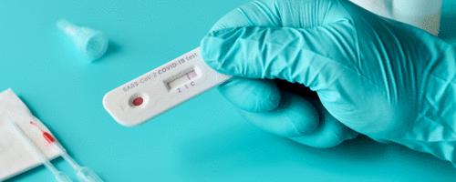 Nossos anticorpos contra o novo coronavírus têm data de validade?