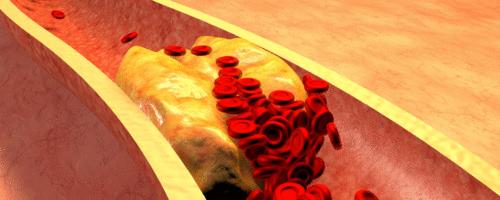 Dieta mediterrânea reduz a progressão da aterosclerose na doença coronariana