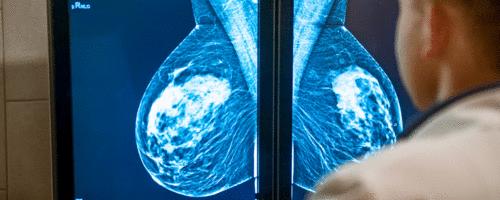 Como rastrear o câncer de mama?