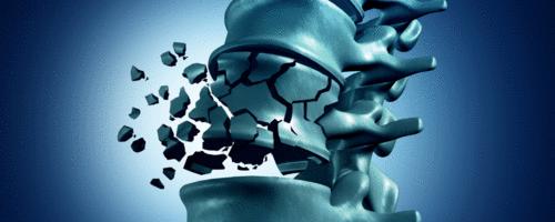 Prevenção, triagem e diagnóstico da osteoporose