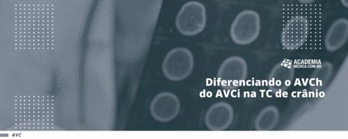 Diferenciando o AVCi do AVCh na TC de crânio