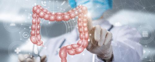 Uso de antibióticos aumenta o risco de câncer de colorretal