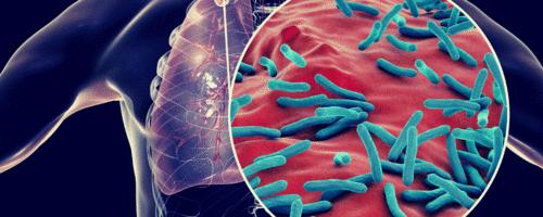 Como a OMS recomenda que seja o tratamento para a tuberculose resistente