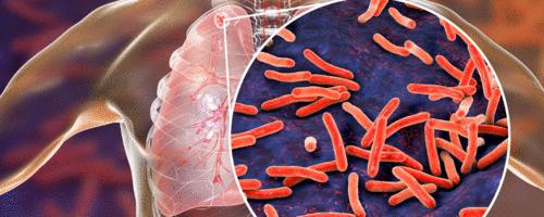Número de mortos pela tuberculose volta a crescer pela primeira vez em mais de uma década